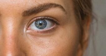 Dit wil je weten: De feiten en fabels over acne