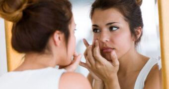 Dit zijn de meest voorkomende soorten acne + wat je eraan kunt doen