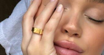 huid skin FEM FEM